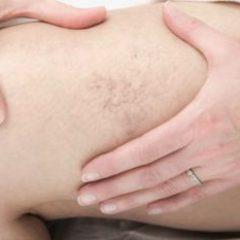behandelingen van spataderen